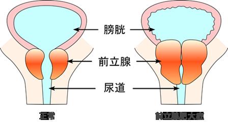 症 前立腺 治療 肥大